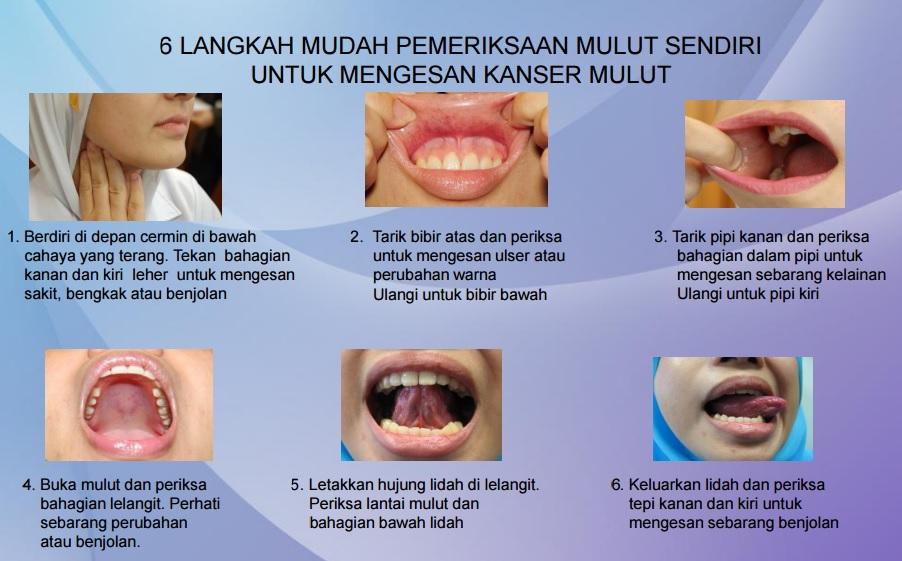 Kaedah Pemeriksaan Mulut Mengesan Kanser Mulut