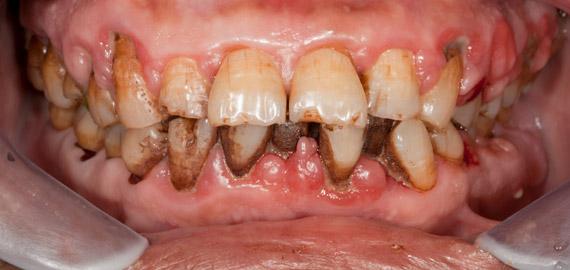 Penyakit Gusi Atau Periodontitis