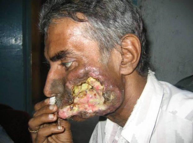Penyakit Kanser Mulut Yang Kritikal