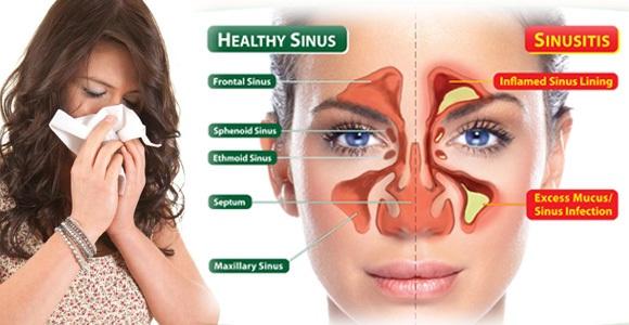 Penyakit Resdung Atau Sinusitis