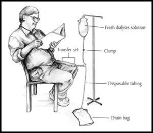 Rawatan peritoneal dialysis.