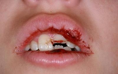 Trauma Pada Gigi Akibat Kecedaraan Dan Kemalangan