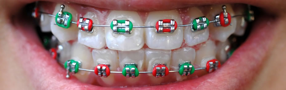 Fixed Appliances Braces Atau Aplians Teta