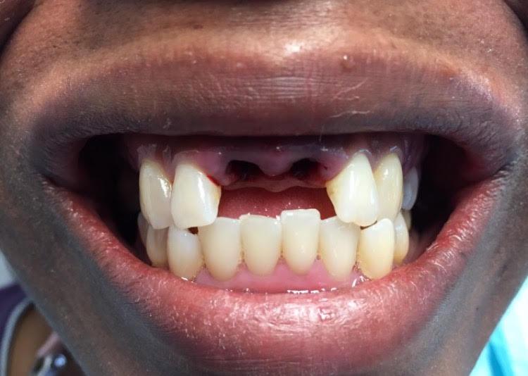 Immediate Denture Before 1