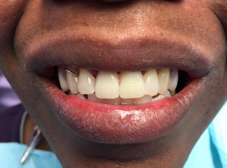 Immediate Denture Before