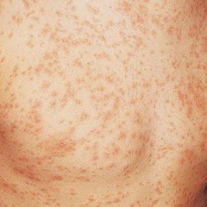 Ruam Kesan Virus Hiv