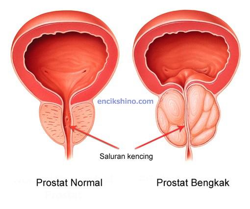 Prostat Bengkak