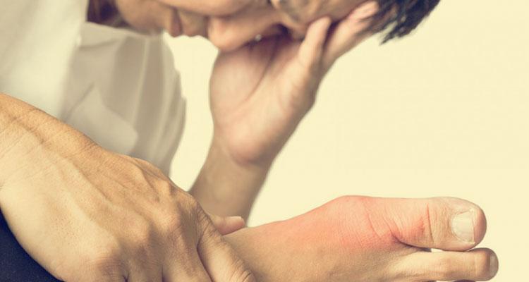 Petua Tradisional Penyakit Gout, Tanda Tanda, Punca & Langkah Pencegahan