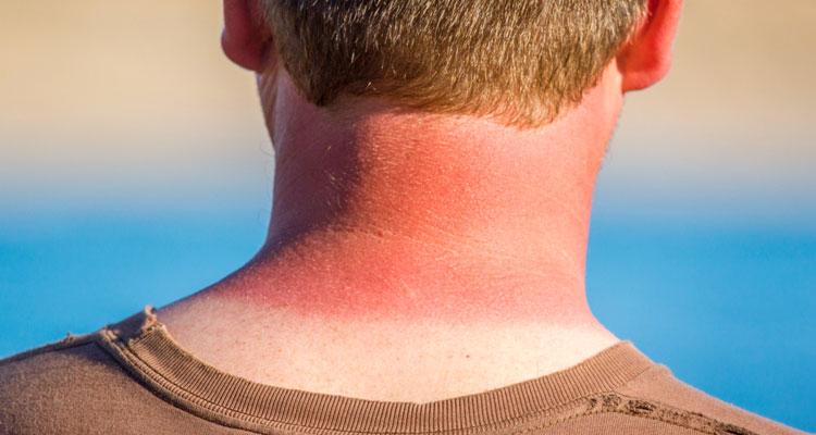 Cara Menghilangkan Sunburn Pada Kulit & Badan | EncikShino.com