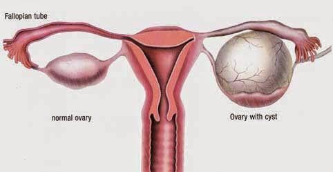 Ovarian Cyst1