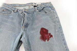 Menghilangkan Darah Pada Pakaian1