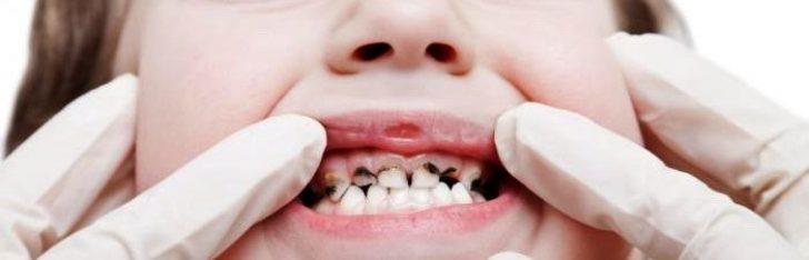 Permalink to Cara Penjagaan Gigi Susu Dan Karies