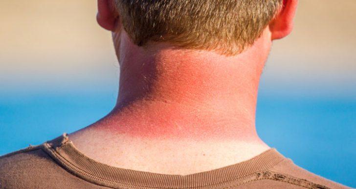 Permalink to Cara Menghilangkan Sunburn Pada Kulit & Badan