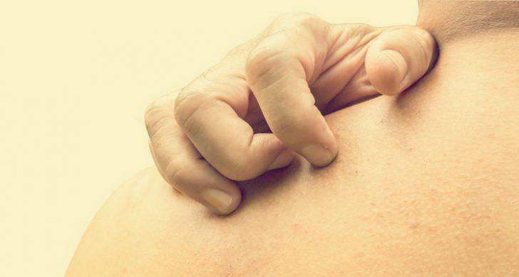 Permalink to Cara Merawat & Menghilangkan Gatal Pada Badan
