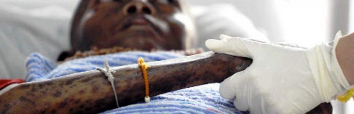 Permalink to Kesan Awal Dijangkiti Penyakit HIV AIDS, Wajib Baca Artikel Ini!